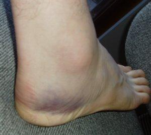 Outside of foot (this is the sore side)